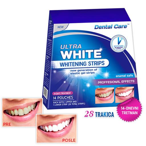 ULTRA WHITE Trake za izbeljivanje zuba – 14 dnevni tretman (28 trakica)