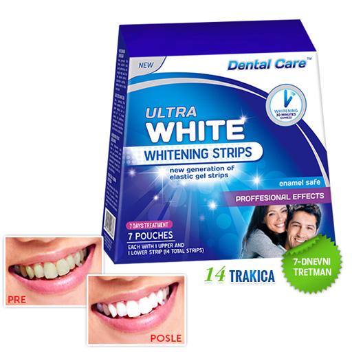 ULTRA WHITE Trake za izbeljivanje zuba – 7 dnevni tretman (14 trakica)